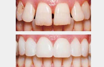 teeth before and after cosmetic procedures