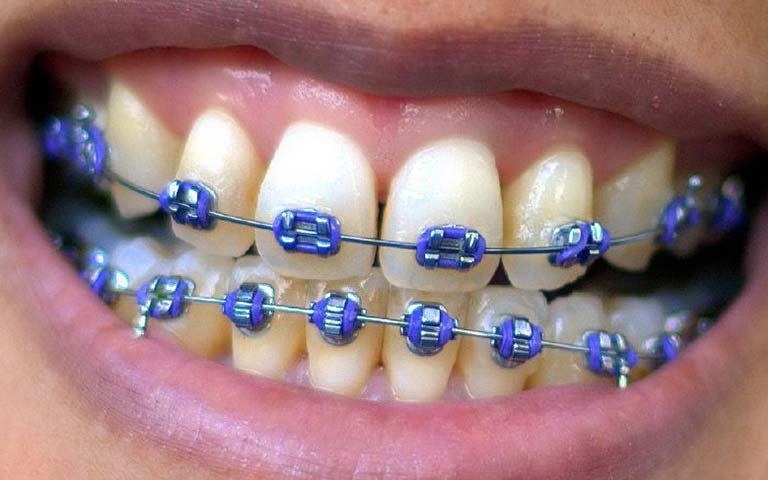 person wearing dental braces