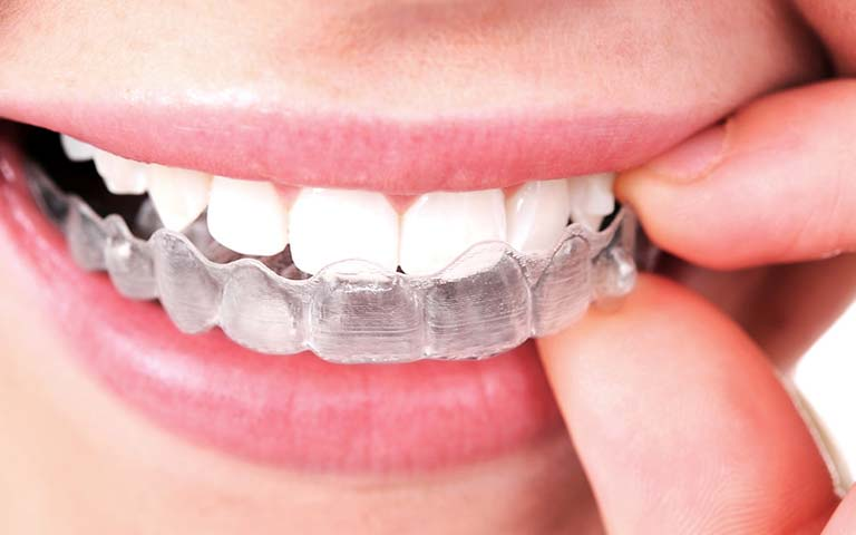 a person putting an Invisalign aligner on the upper teeth