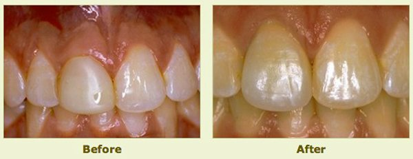 teeth before and after porcelain crowns application