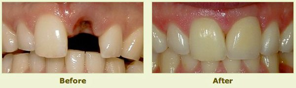 teeth before and after restorative treatment