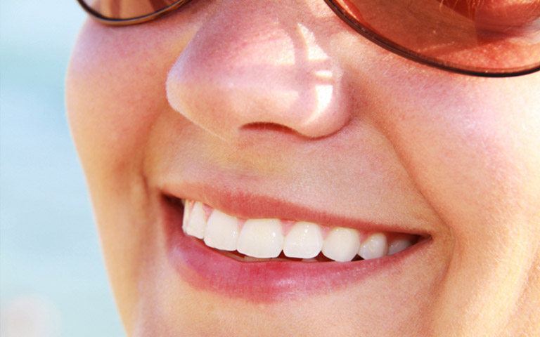happy woman showing beautiful teeth after cosmetic bonding treatment in her smile