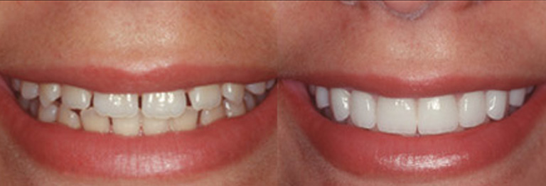 teeth before and after applying venners