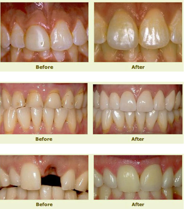 Teeth before and after dental restorative treatment