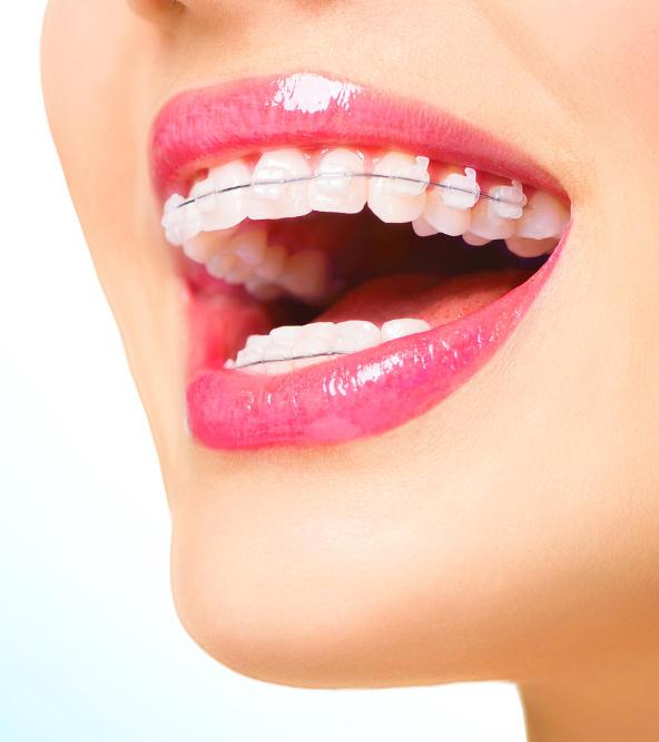 woman's teeth with dental braces