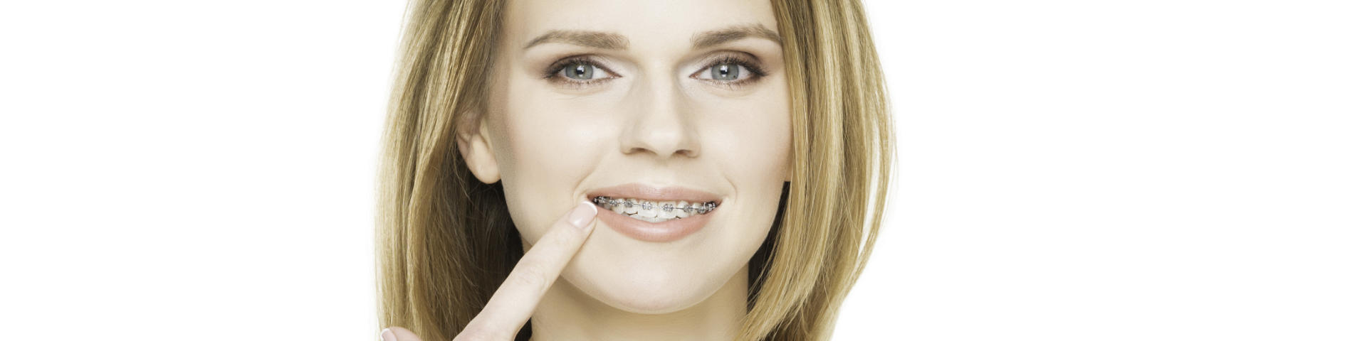 Woman pointing at her dental braces.