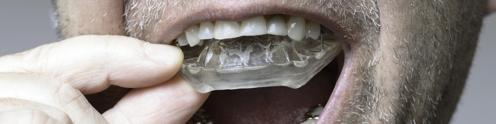 Man inserting night guards for bruxism into his mouth.