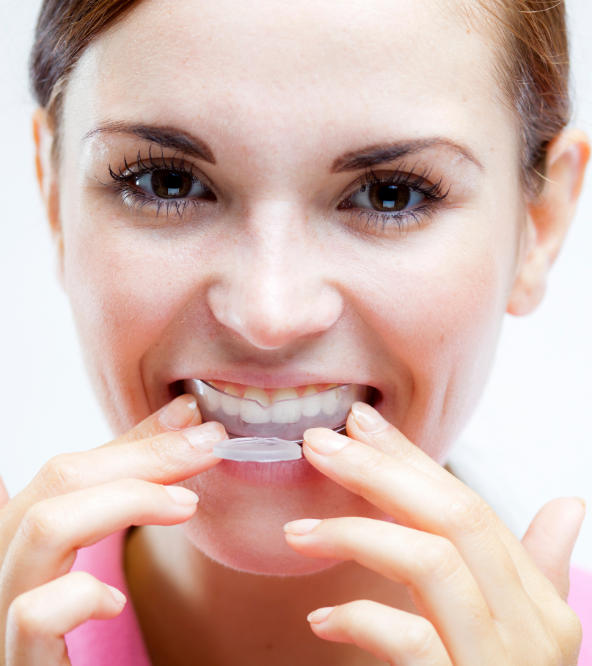 Woman inserting night guards for bruxism into her mouth.