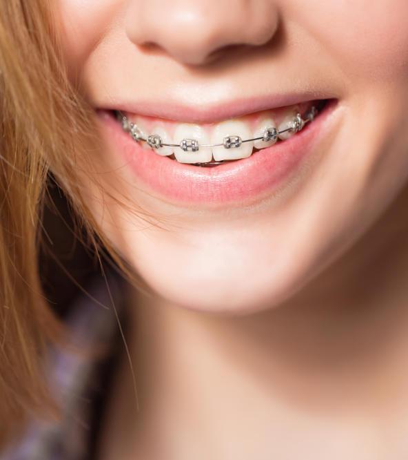 Teenage girl wearing orthodontic braces.